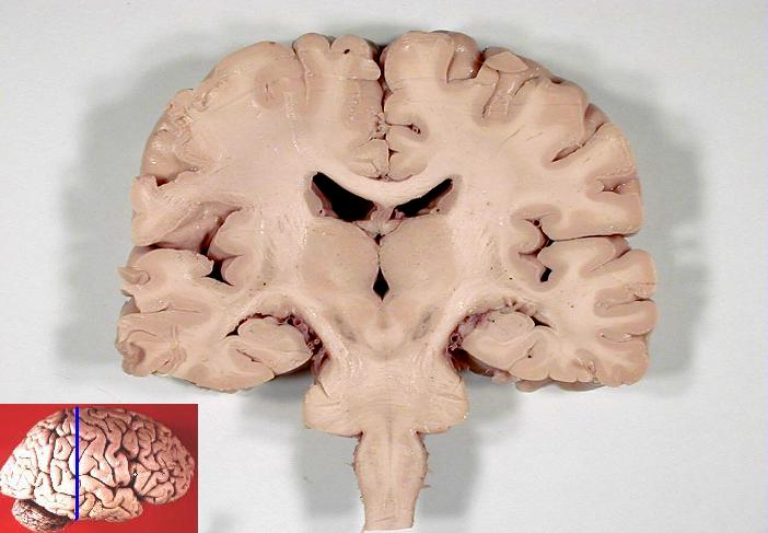 Coronal section of human brain, from John A Beal, via Wikimedia Commons